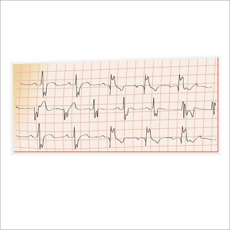 taking pulse: EKG