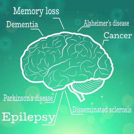 neurology: Human Brain Neurology Diseases Anatomical Conception Vector Illustration Illustration