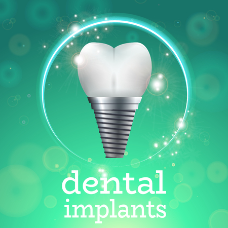 enamel: Dental Implant Surgery Dentistry Vector Illustration. Medical Conception for Tooth Clinic.Sparkling Tooth Implant Clean Enamel on Green Blur Pattern.Implant Crown and Abudment for Dental Clinic