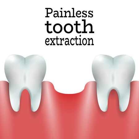 extraction: Teeth Family with Exctracted Tooth in Healthy Gum.Dental Pain free Tooth Extraction Surgery Dentistry Vector Illustration.Medical Conception Tutorial for Tooth Clinic.Oral Surgery for Dental Clinic