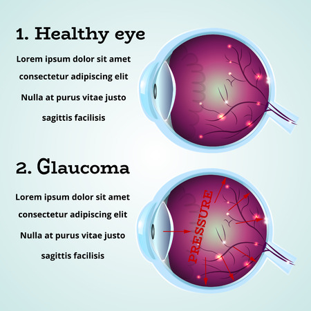 eye cross section: Human healthy eye and Glaucoma disease anatomy structure.Medical infographics for ophthalmology clinic,vector illustration.Cause of Glaucoma on eye cross section - high level pressure,white wallpaper.