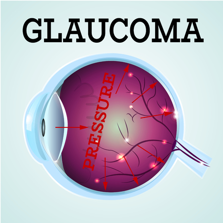 optic nerve: Human Glaucoma disease anatomy structure.Medical infographics for ophthalmology clinic,vector illustration.Cause of disease,eye anatomy - high level pressure,Medical infographics for optician clinic.