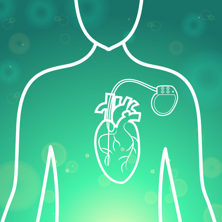 pacemaker: Heart with pacemaker medical wallpaper,vector illustration.Human Heart and Heart Pacemaker lifesaver on green blur pattern human silhouette. Medical wallpaper for medical site,cardiology clinic