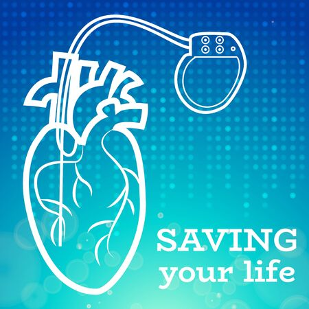 lifesaver: Heart with heart pacemaker medical wallpaper,vector illustration.Human Heart and Heart Pacemaker lifesaver on blue dotted wallpaper. Medical wallpaper for medical site,cardiology clinic Illustration