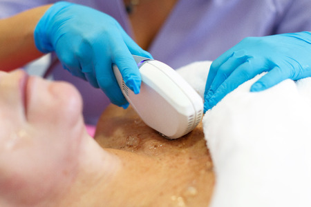 Treatment of the skin from pigmentation in the beauty salon, close-up