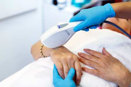 Close-up, with a laser, pigmentation is removed from the hand Stock fotó