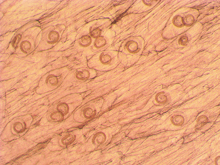 Trichinella spiralis - parasitic worm in muscle in microscope