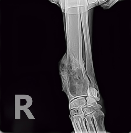 foreleg: X-ray from X-ray of osteosarcoma bone tumor foreleg of a dog.