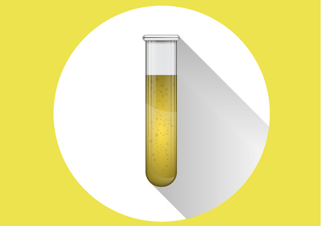 Urine test for doping in a glass tube. Medical examination.