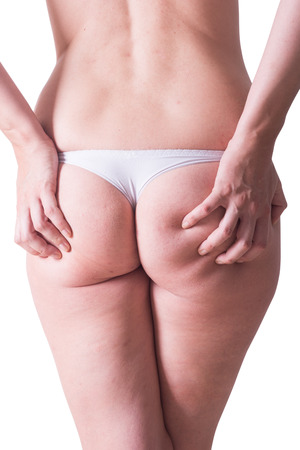 grosse fesse: Woman in white panties with cellulite on her ass . isolated on white backgroun with clipping path included