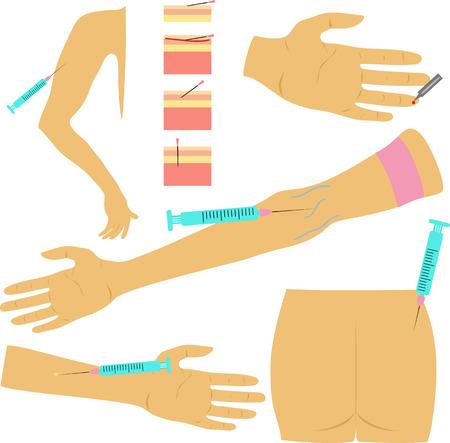 inyeccion intramuscular: diferentes métodos de jeringa de inyección