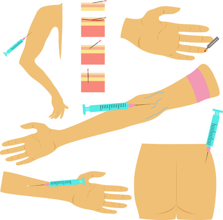 different methods of injection syringe