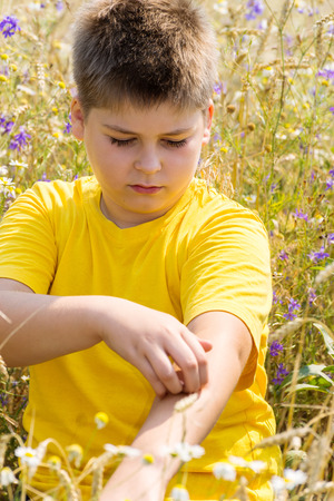 Boy with an allergy to the hands