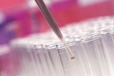 Pipette with emerging drop of liquid over plastic centrifuge test tubes in a research lab