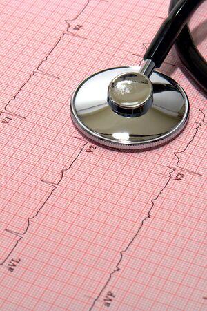 Medical doctor stethoscope over EKG Graph