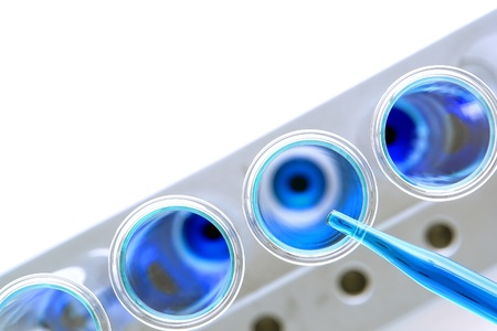 Laboratory pipette filled with blue liquid over glass test tubes on a rack viewed from above for an experiment in a science research lab