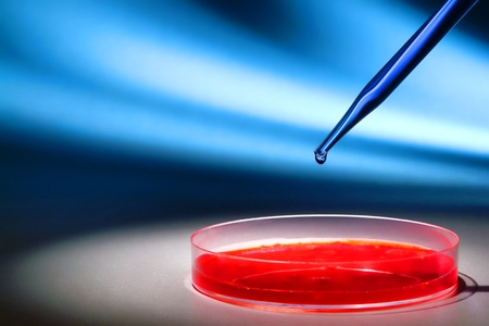 Laboratory pipette with drop of blue liquid over Petri dishes with red biological analysis solution contaminated by infectious bacteria growth for a biotechnology experiment in a science research lab Stock Photo