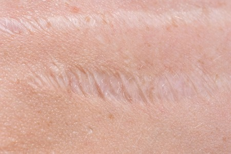 Scar on the skin. Human scar close-up