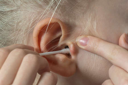 women's ear close-up to clean the cotton bud. deafness concept. high quality Archivio Fotografico