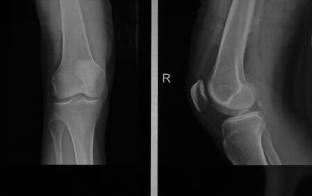 X-ray edk in the knee joint in two projections of an adult male with osteoarthritis. Selective focus. Blur. Noise, sharpness and grain are typical for X-rays. Horizontal orientation.