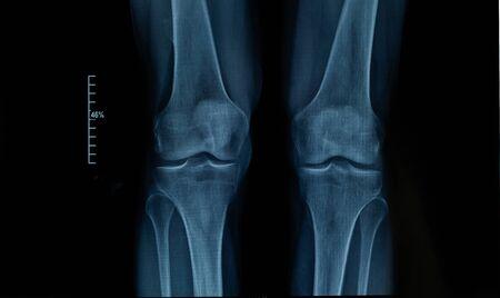 X-ray edk dans l'articulation du genou d'un homme adulte souffrant d'arthrose. Mise au point sélective. Se brouiller. Le bruit, la netteté et le grain sont typiques des rayons X. Orientation horizontale.