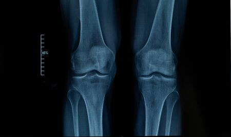 X-ray edk in the knee joint of an adult male with osteoarthritis. Selective focus. Blur. Noise, sharpness and grain are typical for X-rays. Horizontal orientation.