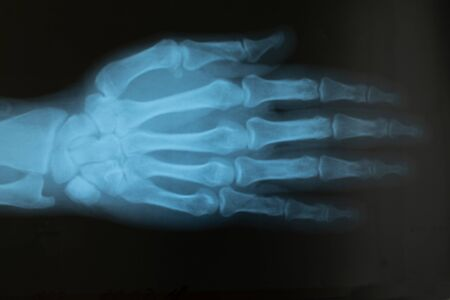 X-ray of the hand of an adult male with an injured finger. Selective focus. Blur. Noise, sharpness and grain are typical for X-rays. Horizontal orientation.