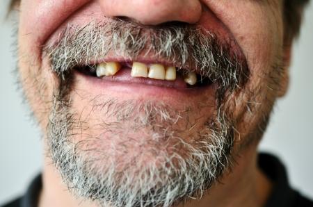 dientes sucios: parte de un hombre Foto de archivo
