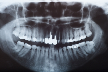 dental image: clinical checkup  X-ray dental detail