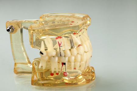 dental equipment and health Stock Photo