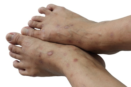 hormonal: non-contagious disease that affects mainly the skin
