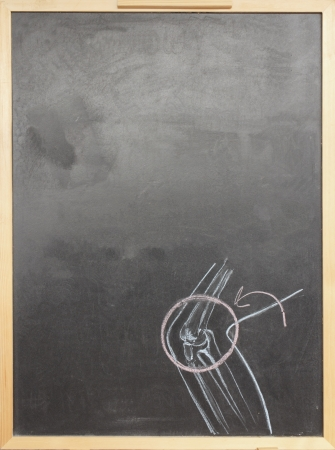 human joint: Chalk drawing human joint sketched on chalkboard Stock Photo