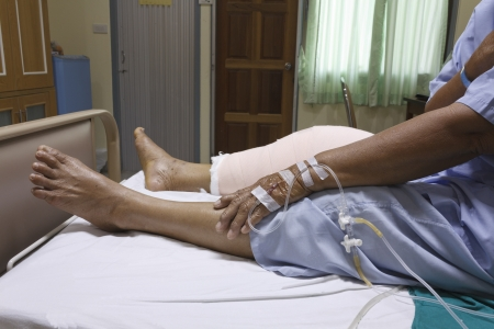 Knee replacement surgery after operation patient senior woman (60s) on the bed in hospital Stock Photo - 16567487