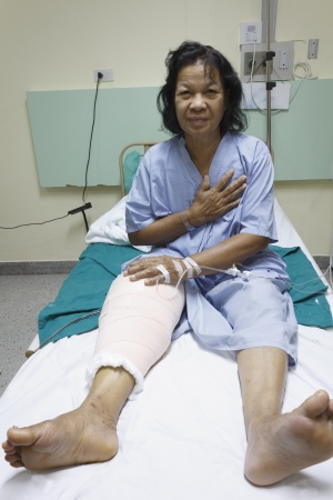 Knee replacement surgery after operation patient senior woman (60s) on the bed in hospital Stock Photo - 16567480