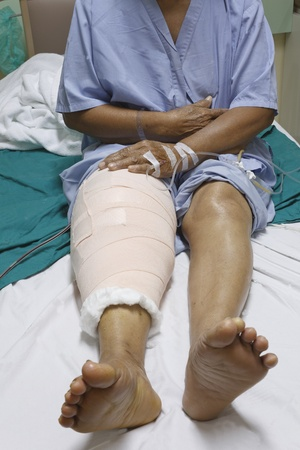 Knee replacement surgery after operation patient senior woman (60s) on the bed in hospital Stock Photo - 16567483
