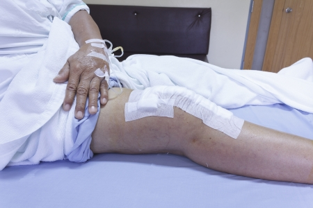 Knee replacement surgery after operation patient senior woman (60s) on the bed in hospital Stock Photo