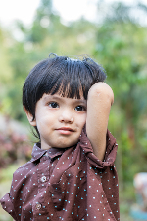 itch: Portrait of asian cute little boy itch allergy skin