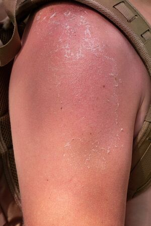 hand in the shoulder area affected by sunburn. Red, inflamed, peeling skin.