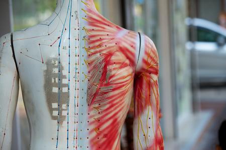 medicina tradicional china: Maniquí de la acupuntura china en la calle Hong Kong Foto de archivo