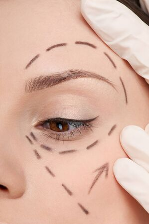 Beautician touch and draw correction lines on woman face. Before plastic surgery operetion. Isolated Stock Photo - 10583032