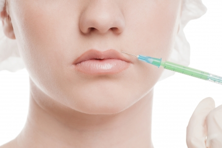 Cosmetic botox injection in the female face. Lips and cheek zone. Isolated on white Stock Photo