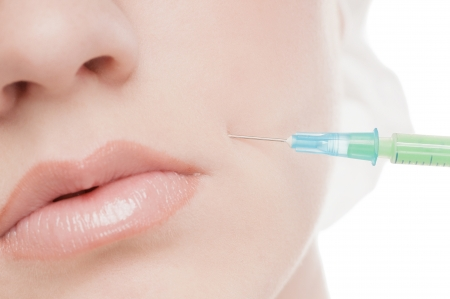 Cosmetic botox injection in the female face. Lips and cheek zone. Isolated on white Standard-Bild