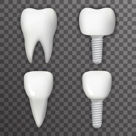 implanted: Dental Implant Realistic 3d Tooth Poster Transperent Stomatology Icon Template Background Mock Up Design Vector Illustration Illustration