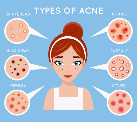 Face acne women skin cosmetic care pimple problem beauty cosmetics medicine beautiful girl head vector design illustration Vector Illustration