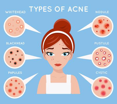 Visage acné femmes peau soins cosmétiques bouton problème beauté cosmétiques médecine belle fille tête vector design illustration Vecteurs