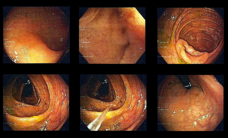 colonoscopy: Colonoscopy - images from different locations inside large intestine