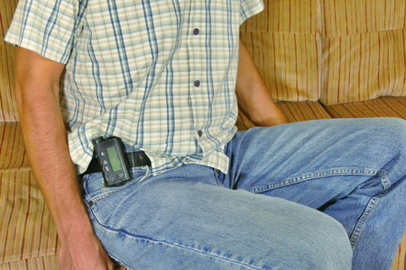 Diabetic with insulin pump on belt