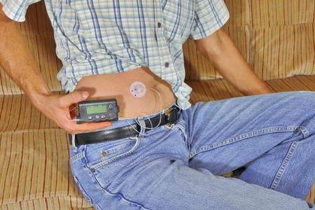 Diabetique avec pompe à insuline dans l'abdomen Banque d'images - 83667371