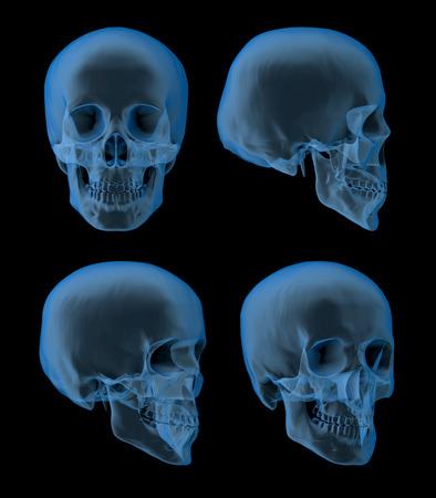 人間の頭蓋骨の x 線写真、フロント、サイド ビュー