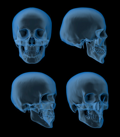 Views of a human skull, x-ray picture, front-, side views Stock Photo